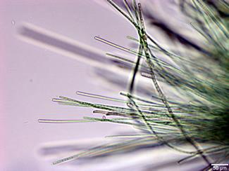 phormidiumlyngbya